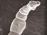 ちょっとコミカルな顔つきですが、とても危険な寄生虫です。